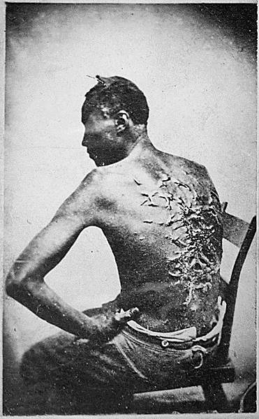 Overseer Artayou Carrier whipped me. I was two months in bed sore from the whipping. My master come after I was whipped; he discharged the overseer. The very words of poor Peter, taken as he sat for his picture. Baton Rouge, Louisiana.